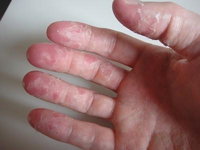 が むける 手のひら の 病気 皮